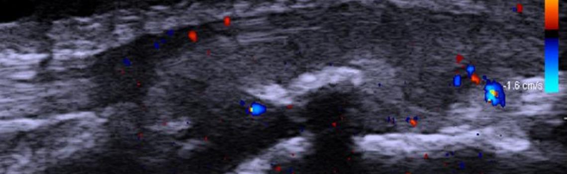 fysiotherapie.haarlem.echografie